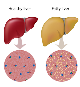Do You Have Fatty Liver Disease?