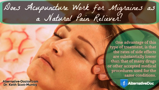 Does Acupuncture Work for Migraines as a Natural Pain Reliever?