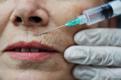 Bacterial Infections from Cosmetic Fillers?