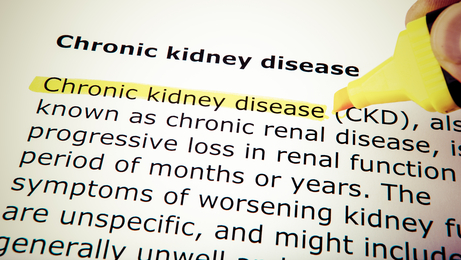 Kidney Disease Treatment:  Can Exercise Relieve Kidney Pain?
