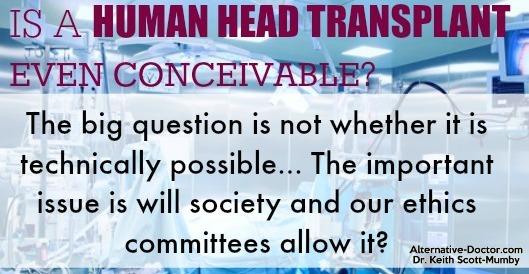 head-transplant_IG_2