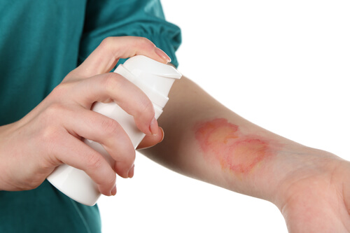 Can Vinegar Treat Burn Wounds?