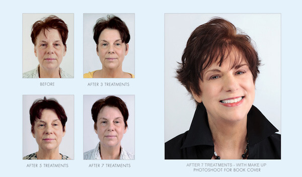 non-surgical-cosmetic-procedure-avazzia-before-and-after