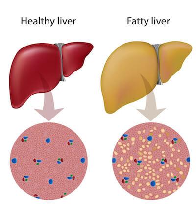 benefits-of-bergamot-fatty-liver