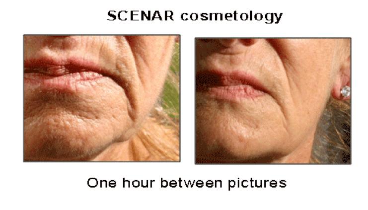 scenar-cosmetic-pain-management-techniques