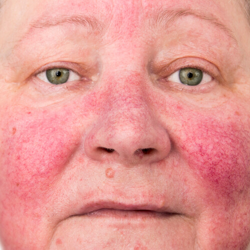 There are loads of skin parasites that can cause major irritation such as rosacea. Click here to read about these parasites and adopt methods to keep your skin as healthy as possible...