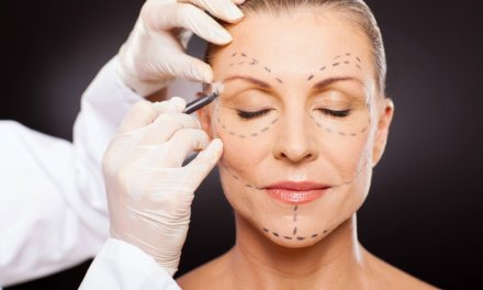 Don't Fight the Signs of Aging with Dangerous Techniques!