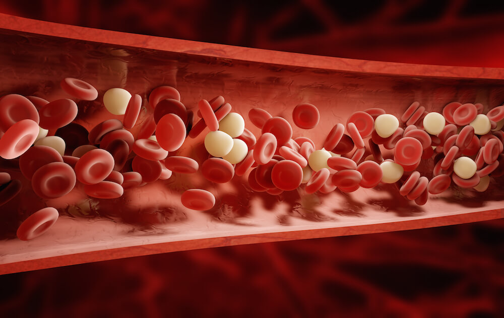 Natural Ways to Avoid the Dangers of Blood Clots